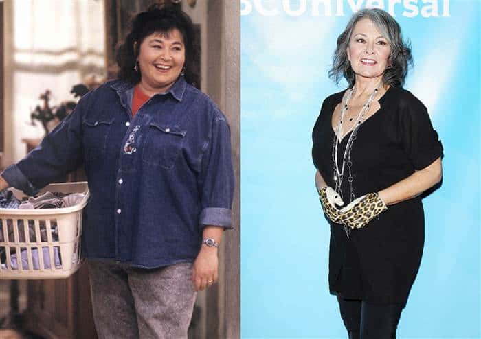 20 Celebrities Who Have Had Weight Loss Surgery